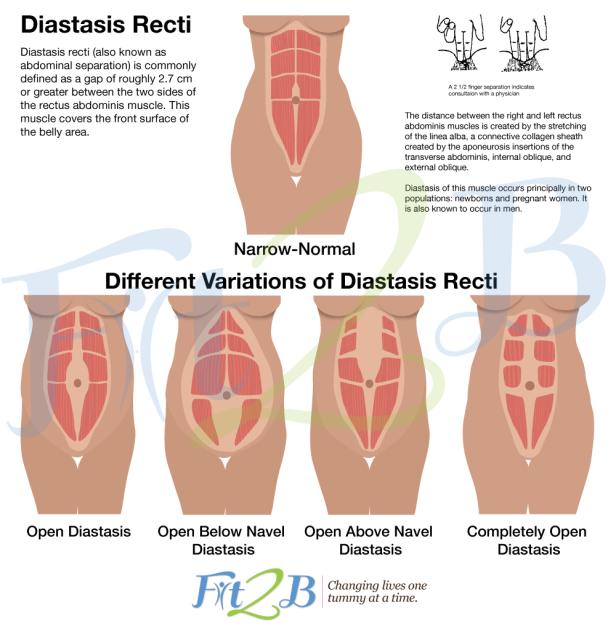 diastasis_V2_watermark