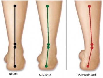 supination